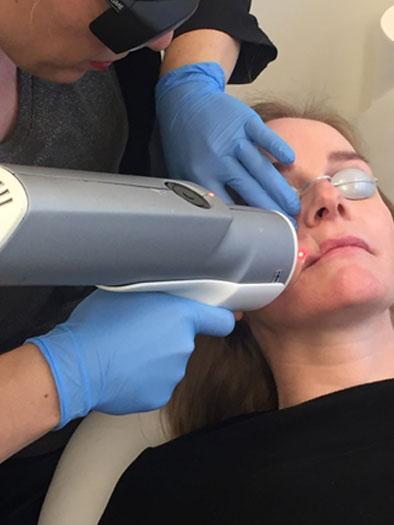 Foto während der CO2 Fractional Laser Behandlung