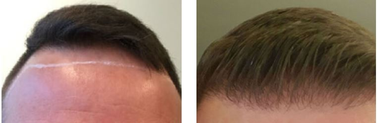 Haarausfall – Prävention und Behandlung