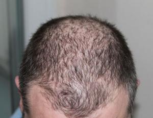 Alternativen zurg Haartransplantation.