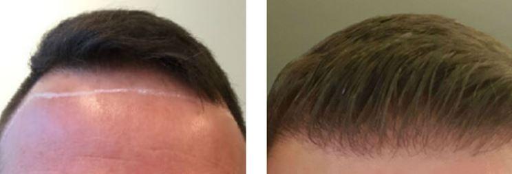 Haare implantieren.