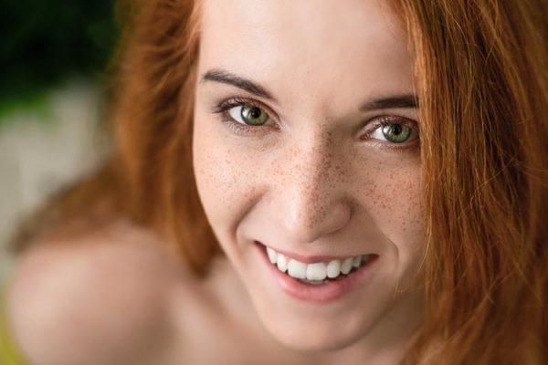 Schönheitschirurgie Weert | Pigmentflecken
