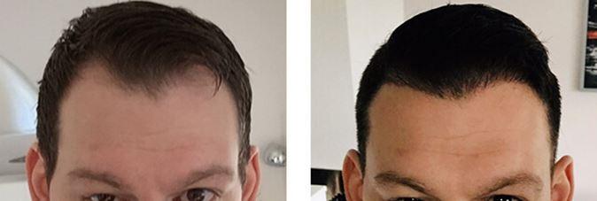 Haarkliniken in den Niederlande, Belgien und der Türkei im Vergleich.