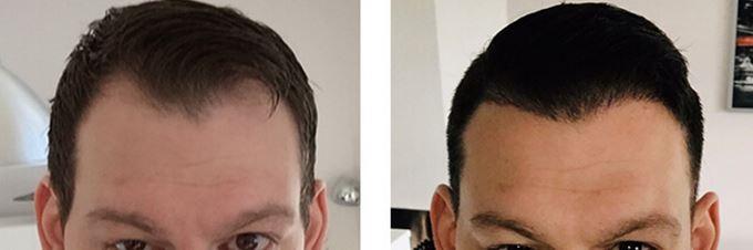 Haartransplantation Angebote und Rabatte.
