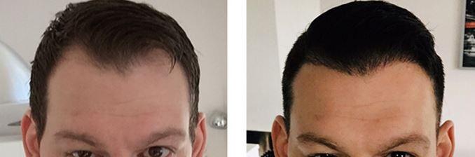 Haartransplantation bei Ausgedünntem Haar.