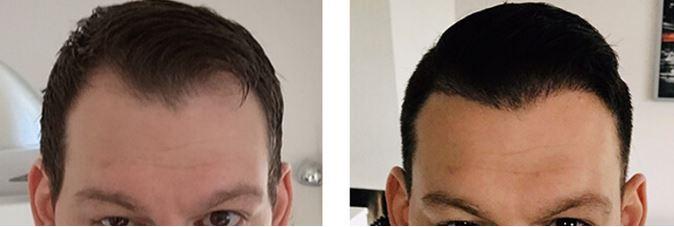 Haartransplantation Geheimratsecken.