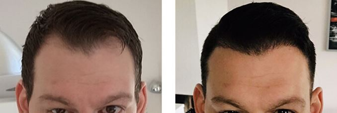 Haartransplantation Haarkranz.